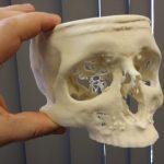 3Dtisk zdravotní pomůcka